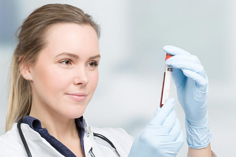 Bestimmung von Progesteron in den Wechseljahren
